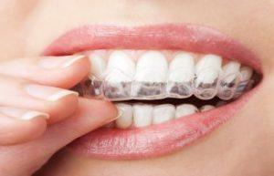Woman imposing Invisalign aligner on teeth
