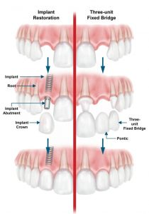 Diagram of the procedure for mounting dental implants