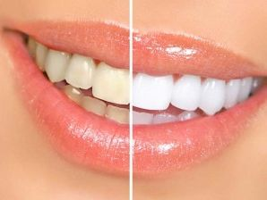 Comparison of teeth with tincture and bleached teeth