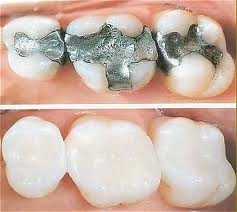Teeth with colored fillings