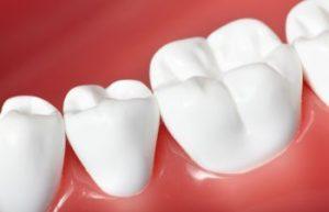Healthy Teeth Marietta GA