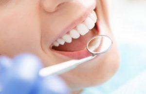 Teeth Whitening Marietta GA