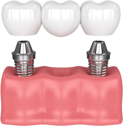 Dental bridge model based on implants