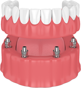 All-on-4 Implant Support Dentures