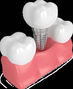 Model of a single dental implant