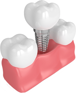 Model of a single dental implant